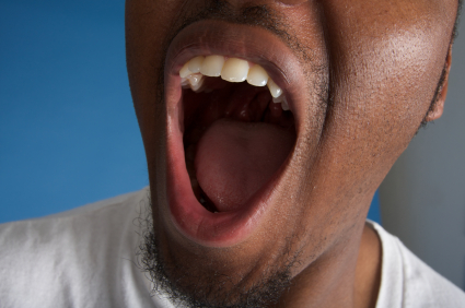 How Open-Mouth Breathing Can Lead to Increased Cavities